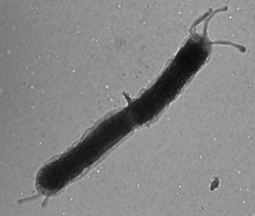 Figure 2. TEM image of a H. pylori fliA mutant.  FliA is an alternative sigma factor required for transcription of genes whose products are required late in flagellar assembly. The bacterium is undergoing cytokinesis and has truncated flagella the cell poles. Image taken by Dr. Jennifer Tsang in the Hoover lab.